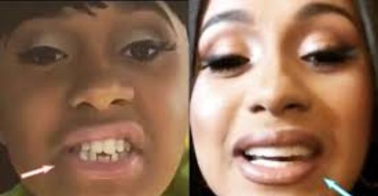 Cardi B S Teeth Used To Be Whack Then She Made A Money Move